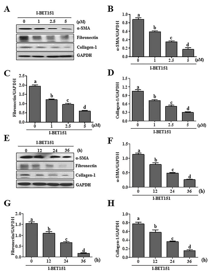 Figure1: I-BET151 inhibits serum-induced activation of renal interstitial fibroblasts in a dose and time dependent manner.