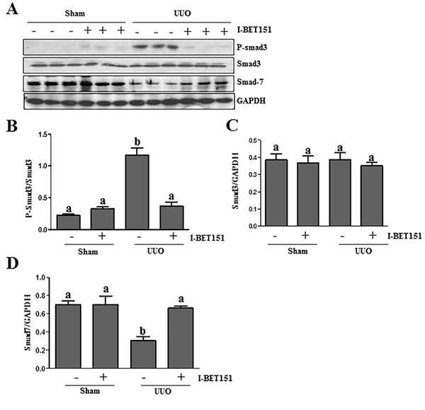 I-BET151 inhibits activation of TGF-β1/Smad3 signalingin UUO models.