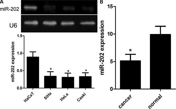 Reduced miR-202 expression in CC cell lines and tissues.