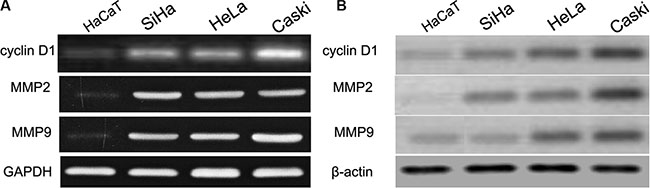 cyclin D1, MMP2 and MMP9 were up-regulated in CC cell lines and HaCaT cells.