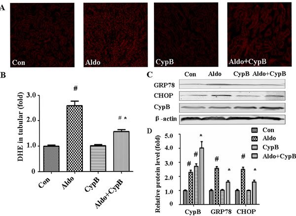 Effects of CYPB overexpression on aldosterone (Aldo)-induced oxidative stress and ERS