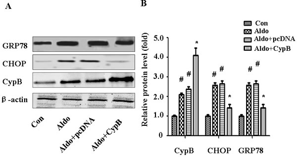 CYPB overexpression suppresses aldosterone (Aldo)-induced ERS.