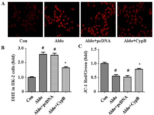 Aldosterone (Aldo) induces ROS production leading to MtD.