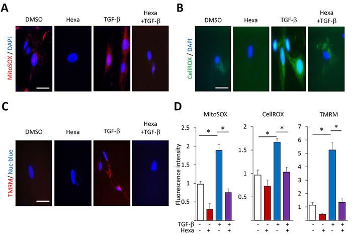 Hexafluoro abrogates TGF-β-induced ROS production and mitochondrial membrane potential.