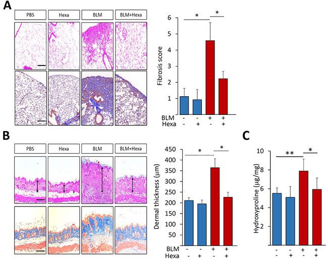 Hexafluoro treatment ameliorates bleomycin-induced organ fibrosis.