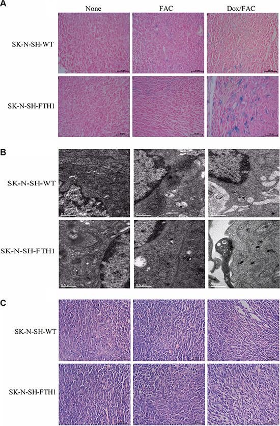 Ex vivo histological validation of FTH1 expression induced in subcutaneous SK-N-SH-WT and SK-N-SH-FTH1 tumors.
