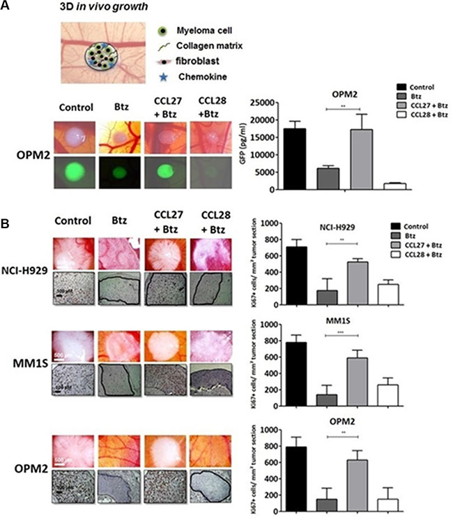 CCL27 rescues myeloma cells from bortezomib-induced cell death in a xeno-transplanted model.