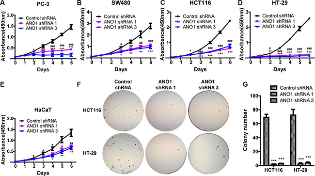 Silencing ANO1 inhibits cell proliferation.