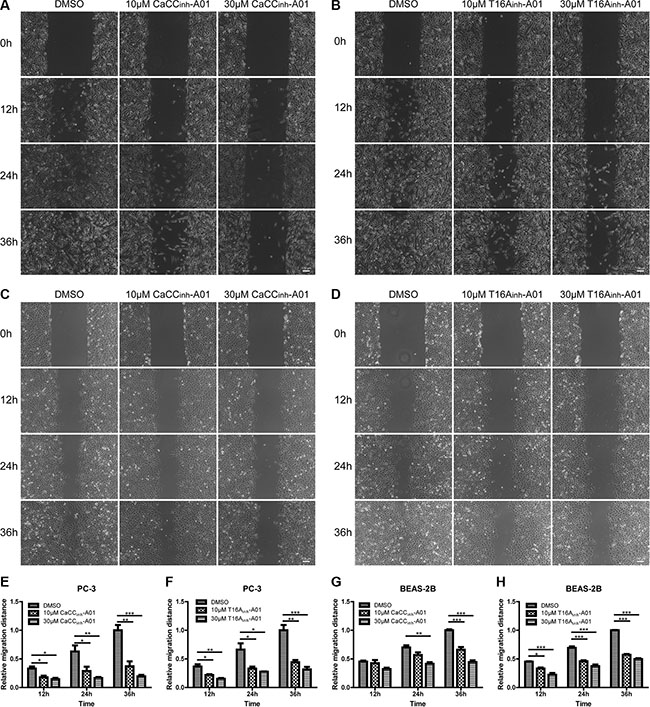 Suppression of cell migration of PC-3 and BEAS-2B cells by ANO1 inhibition in wound-healing assay.