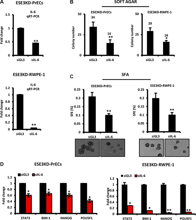IL-6 is a mediator of prostate epithelial cell transformation and stem cell properties upon loss of ESE3/EHF.