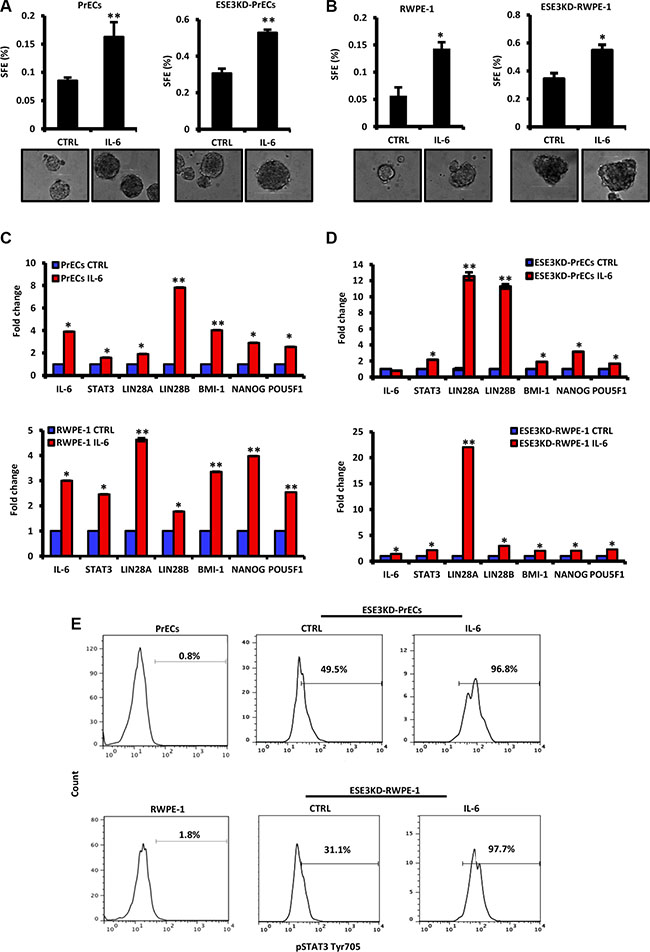 IL-6 induces transformation and cancer stem-like phenotypes in normal and more significantly in ESE3KD prostate epithelial cells.