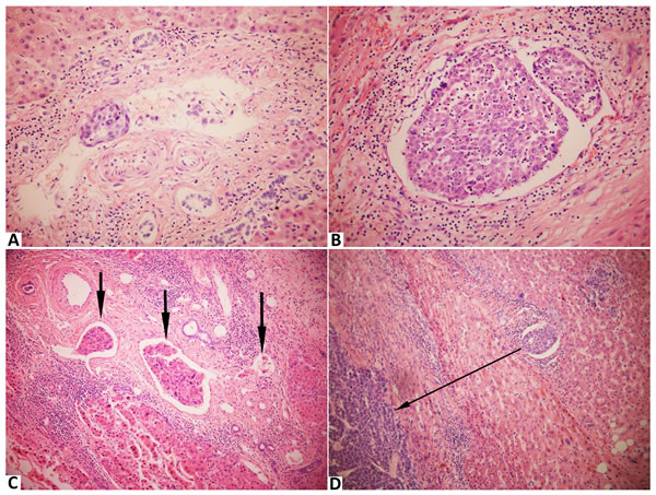 Stained with hematoxylin and eosin in hepatocellular carcinoma with microvascular invasion.
