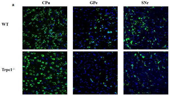 TRPC1 depletion caused neuronal loss in basal ganglia.