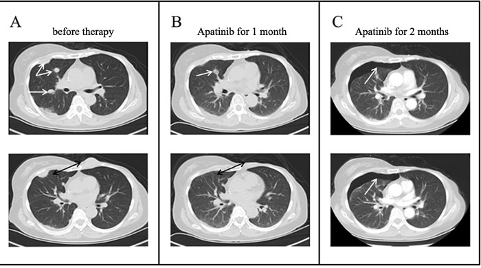 Chest CT scans before and after Apatinib therapy.