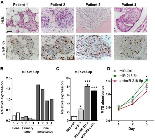 miR-218-5p is elevated in bone metastases.