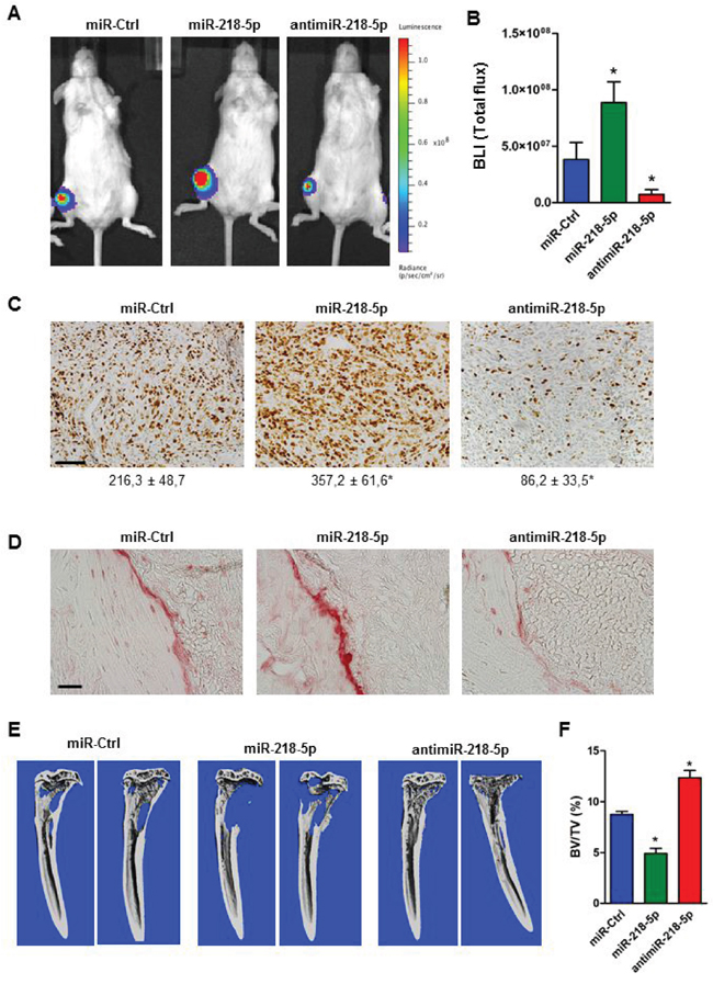 AntimiR-218-5p treatment reduces tumor growth and protects from breast cancer-induced osteolytic disease.
