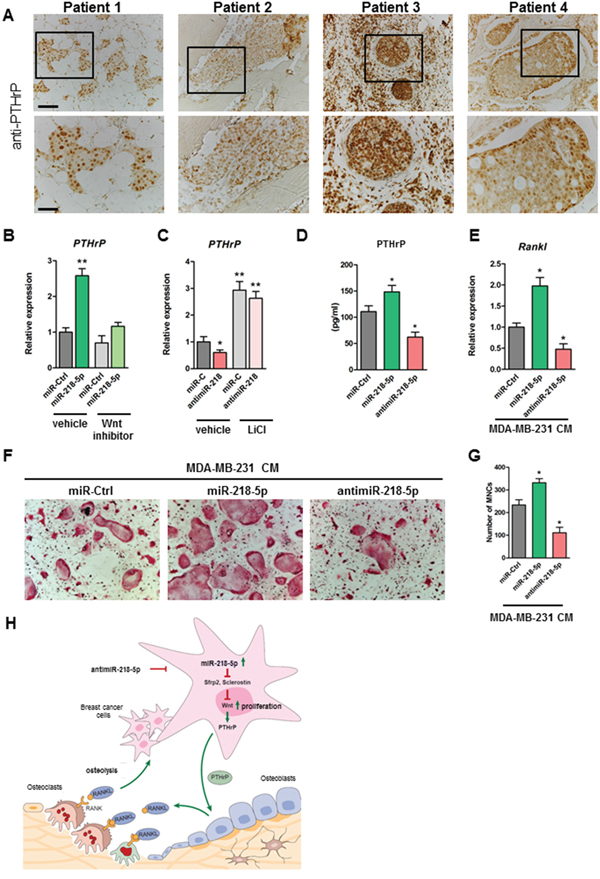 Inhibition of miR-218-5p in breast cancer cells decreases PTHrP expression, reduces Rankl in osteoblasts and impairs osteoclast differentiation.