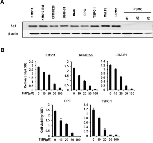 Sp1 expression in MM cells and MM cell viability by Sp1 inhibition.