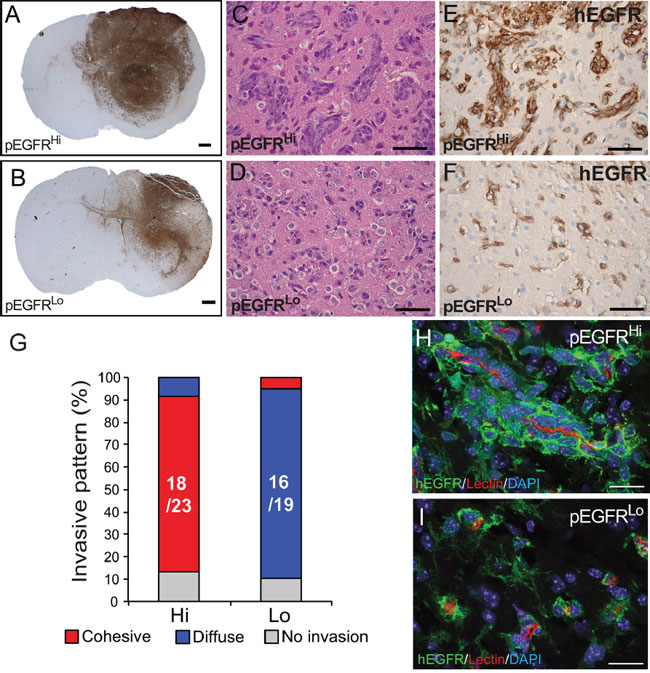 Blood vessel co-option and cohesive versus single cell invasion of tumor cells in vivo.