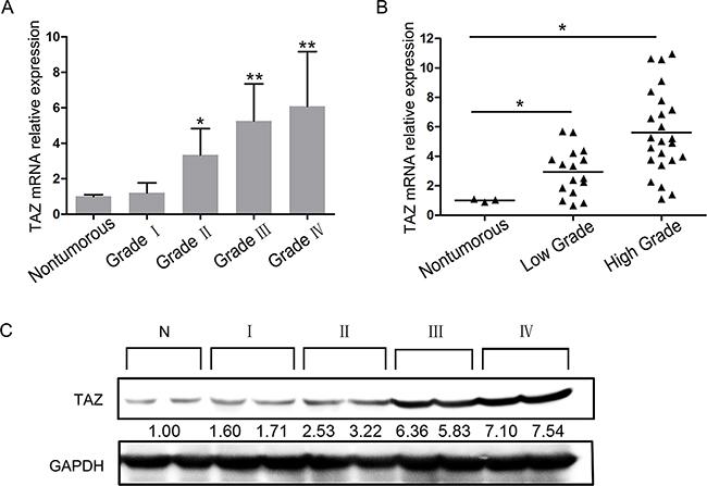 Expression of TAZ in glioma specimens.