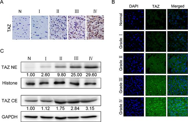 Localization and expression of TAZ in glioma specimens.