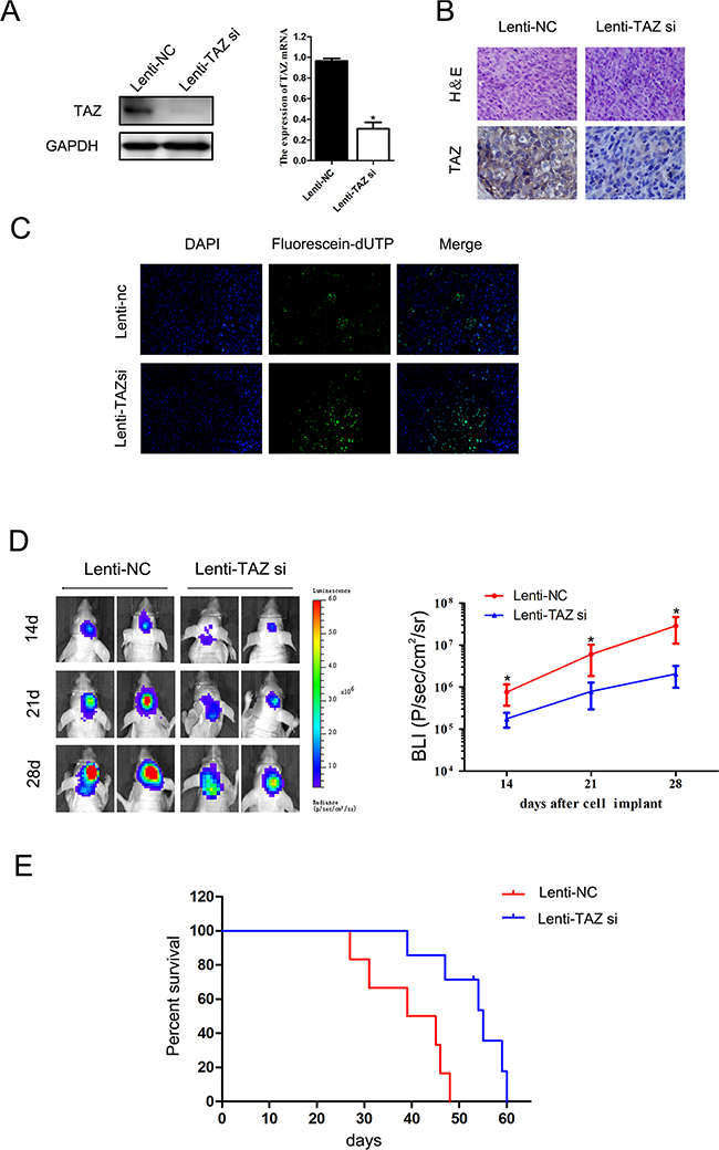The effect of TAZ on glioma growth in vivo.
