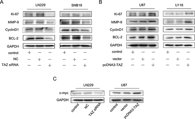 Effect of TAZ on expression of Ki67, MMP-9, Cyclin D1, Bcl-2 in vitro.