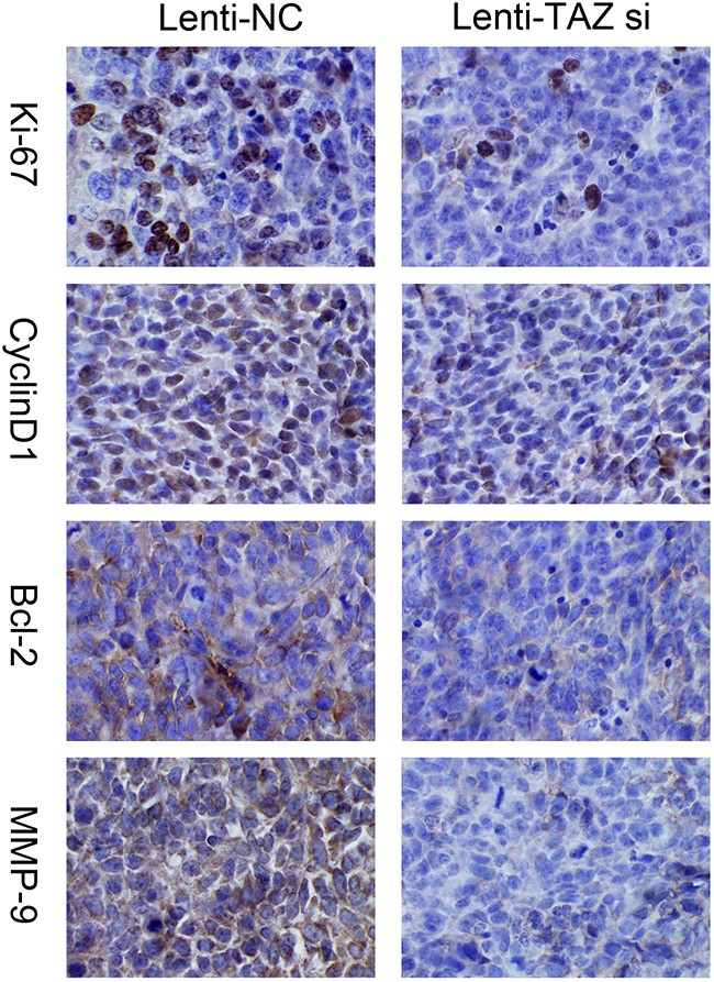 Expression of Ki67, MMP-9, Cyclin D1, Bcl-2 was suppressed in xenograft samples with TAZ knocked down examined by immunohistochemiscal staining (×200).