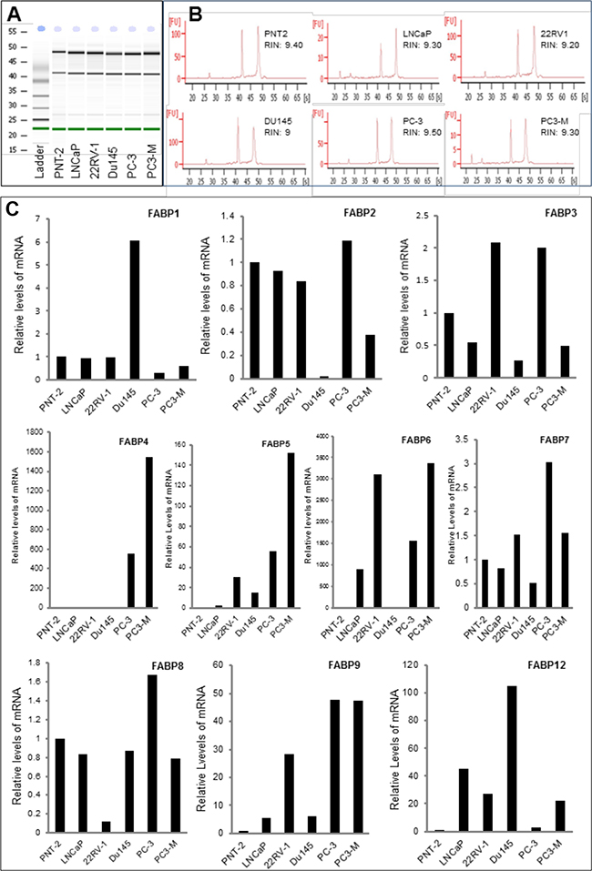 Quantitative PCR analysis of levels of FABP mRNAs in benign and malignant prostate epithelial cells.
