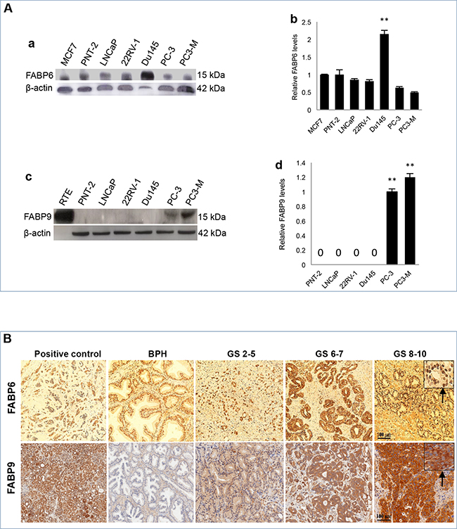 Expression of FABP6 and FABP9 in prostate cell lines and tissues.