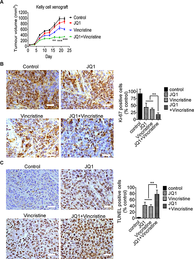 JQ1 and vincristine synergistically suppress neuroblastoma progression in neuroblastoma-bearing mice.