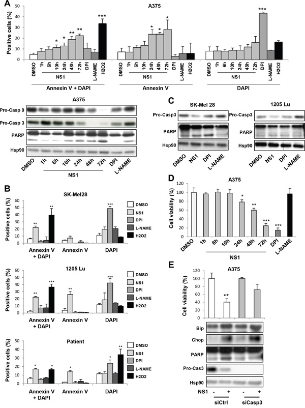 Evidence for apoptosis of melanoma cells treated by 30 μM NS1.