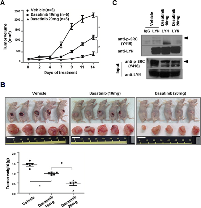 Dasatinib inhibits the growth of LYN-positive lung ADC xenografts.