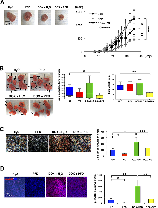 Pirfenidone inhibits primary tumor growth and lung metastasis in combination with doxorubicin in TNBC mouse model.