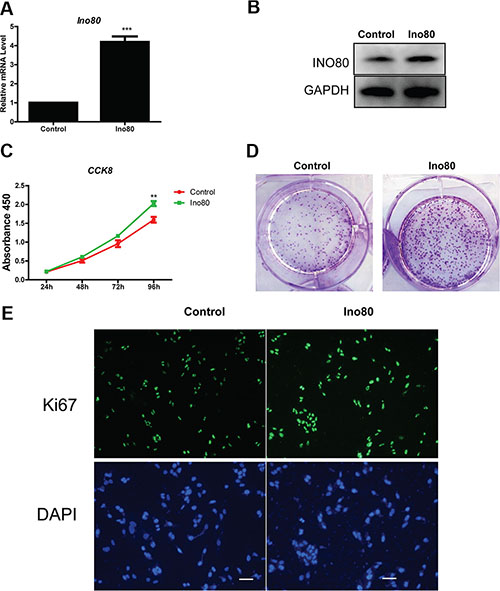 Ino80 overexpression promotes cervical epithelial cell proliferation.