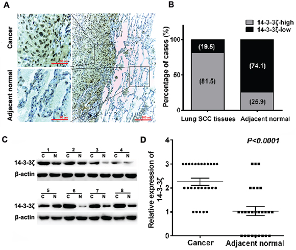 Expression of 14-3-3ζ is significantly up-regulated in lung SCC tissues compared with adjacent normal tissues by IHC and western blot.