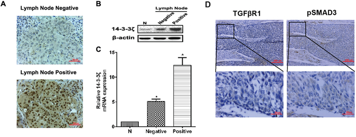 The expression of 14-3-3ζ, TGFβR1 and pSMAD3 proteins in lung SCC tissues and the relationship with clinicopathological characteristics.
