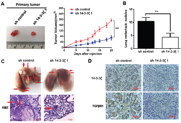 Knockdown of 14-3-3ζ suppressed tumor growth and decreases the formation of metastases in vivo.