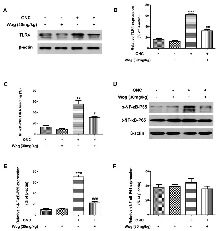 The effect of wogonin on the activation of TLR4-NF-κB pathways in the retina after ONC.
