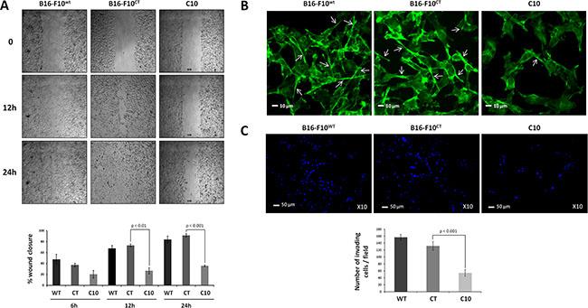 IGF-1 downregulation decreases cell invasion and migration.