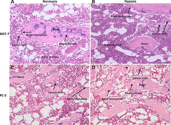 H/ E stained sections of human bone femoral head specimens grown in the presence of human cancer cells, both MCF-7 or PC-3, under normoxic and hypoxic conditions.