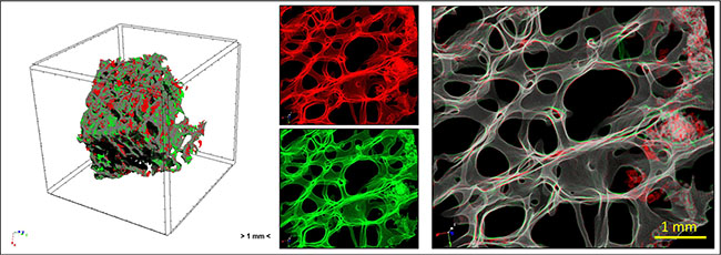 Overview of the study by micro-CT analysis: human femoral head bone specimens were scanned at T0 and T1 and 4D micro-CT analyses was applied to identify regions of bone formation (green) and resorption (red).