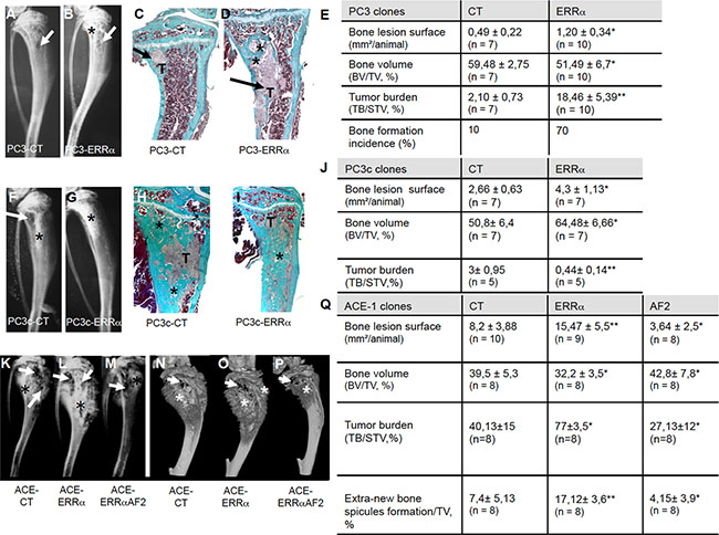 Over-expression of ERRα in prostate cancer cells induced bone lesions development.