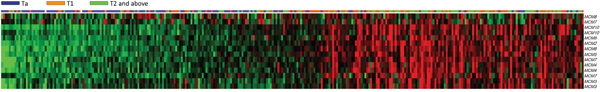 Analysis of transcriptome dataset in urothelial carcinoma from a published transcriptomic dataset (GSE32894).