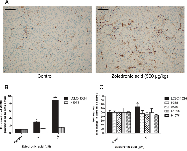 The effect of zoledronic acid on the in vivo vascularization of LCLC-103H xenograft and the in vitro modelling of this phenomenon.