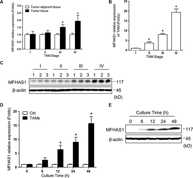 MFHAS1 expression in TAMs is significantly associated with human CRC TNM stage.
