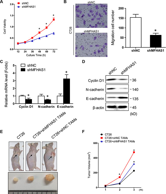 MFHAS1 knockdown in macrophages inhibits CRC in vitro and in vivo.