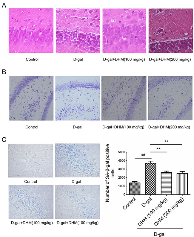 Representative photomicrographs showing histopathological changes in hippocampus tissues with