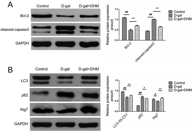DHM attenuated the excessive apoptosis and rescued the deficient autophagy in hippocampus tissues of D-gal-induced aging rats.