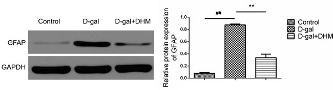 DHM reduced the overexpression of GFAP in hippocampus tissue of D-gal-induced aging rats.